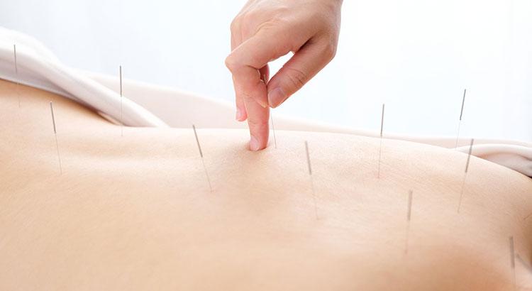 鍼灸(針とお灸)